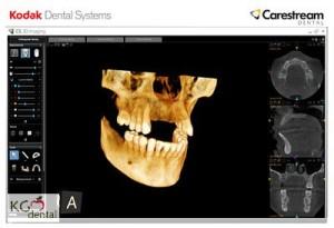3DCT  Röntgen