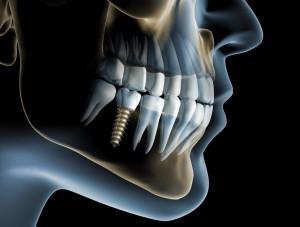 Zahnimplantat 1